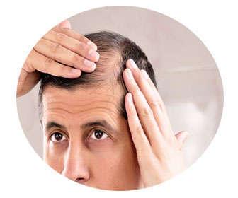 Cómo disimula las entradas del pelo