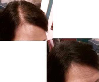 Resultados de la microfibras de carrefour en una mujer con poco pelo